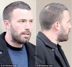 Ben Affleck's Bald Spot