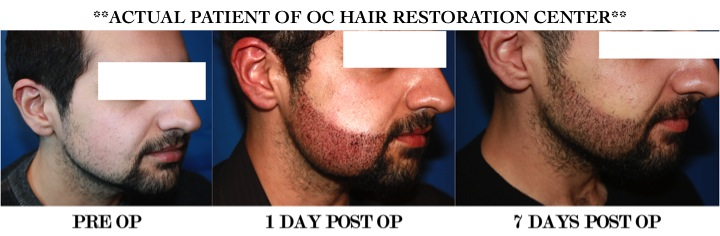 center for facial restoration