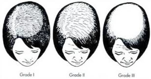 hair-loss-study-3
