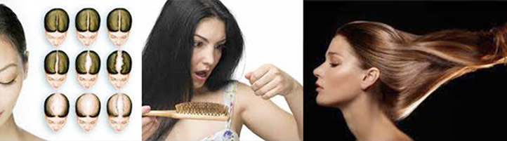 hair loss treatment Irvine