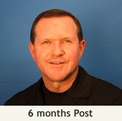 pic-patient-testimonial-6mo-post